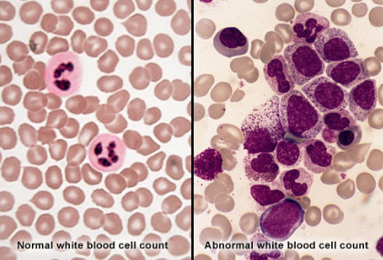 Chronic myeloid leukemia (CML) is one of four main types of leukemia or ...